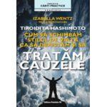 Tiroidita Hashimoto. Tratam cauzele